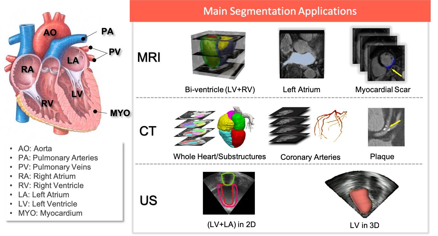 Deep learning for cardiac image segmentation: A review