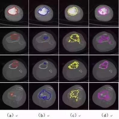 基于深度学习的肿瘤图像分割研究取得进展