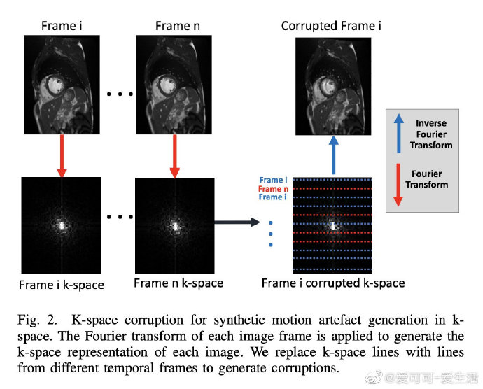 Deep Learning Based Detection and Correction of Cardiac MR Motion Artefacts During Reconstruction for High-Quality Segmentation